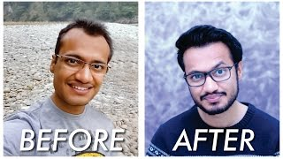 Hair Transplant | Before and After | 1 Year Post Surgery