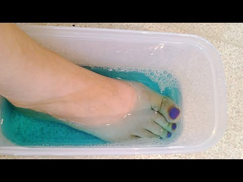 SOAK YOUR FEET IN MOUTHWASH TO TREAT FOOT PROBLEMS  UNBELIEVABLE BUT IT WORKS!