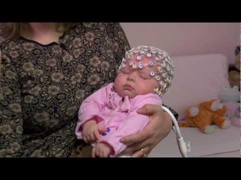 EEG - électroencéphalographie - nourrisson