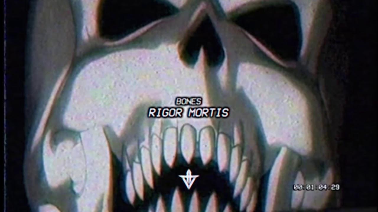 Bones - RigorMortis