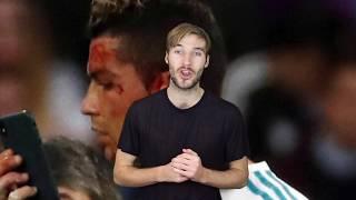 Ronaldo Bloodied & McCarthy Broken - CaughtoffsideTV Daily News