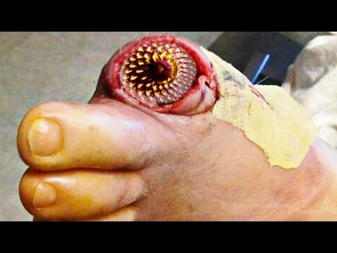 Lamprey disease buzzpls com for Fish eye wart