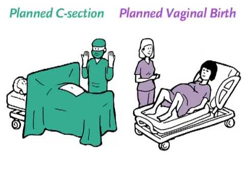 vaginal delivery with