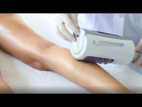 ENG - Endosphères Therapy _ the ultimate body shaping device