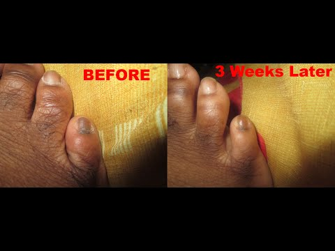 How To Cure Black Toenails Naturally