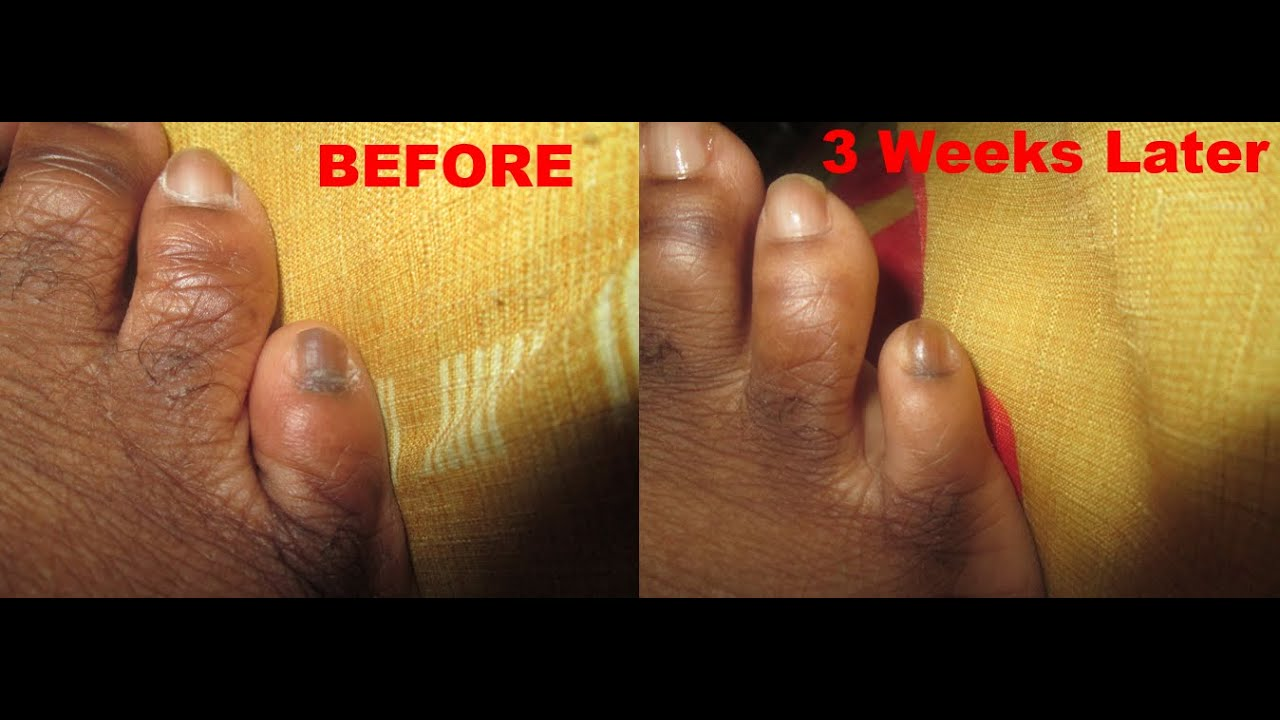 Pinky Toe Is Black - Cure Dark Black Toenails Naturally - YouTube
