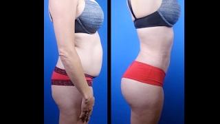 Buttock Augmentation Surgery Before & After photos- Houston Plastic Surgeon -Dr. Cortes
