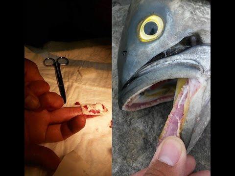 Gator Bluefish Bites Amateur Angler's Fingertip Off (TTYDSWYSAH) (Barnegat Light, NJ)