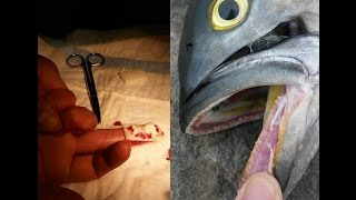 Gator Bluefish Bites Amateur Angler