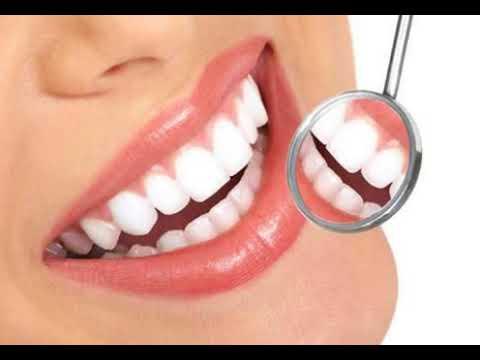 Dahsyat Inilah 10 Cara Menghilangkan Flek Hitam Di Gigi Secara