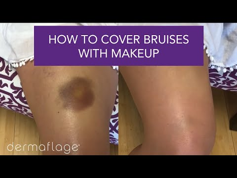 How To Cover Bruises With Makeup (it's Easy!)