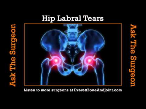 Hip Labral Tears Youtube