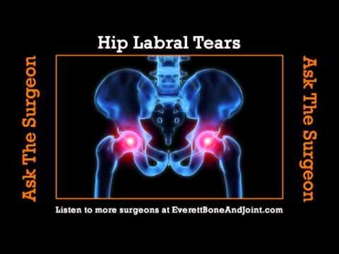 Hip Labral Tears