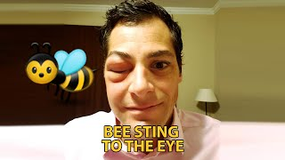 Beesting to the eye (very swollen)
