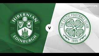 Hibernian vs Celtic Live Stream