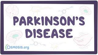 Parkinson's disease - causes, symptoms, diagnosis, treatment & pathology