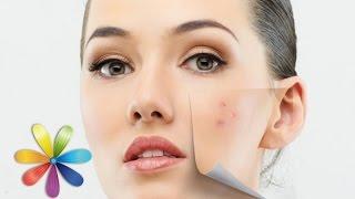 Идеальный макияж для проблемной кожи - Все буде добре - Выпуск 613 - 08.06.15