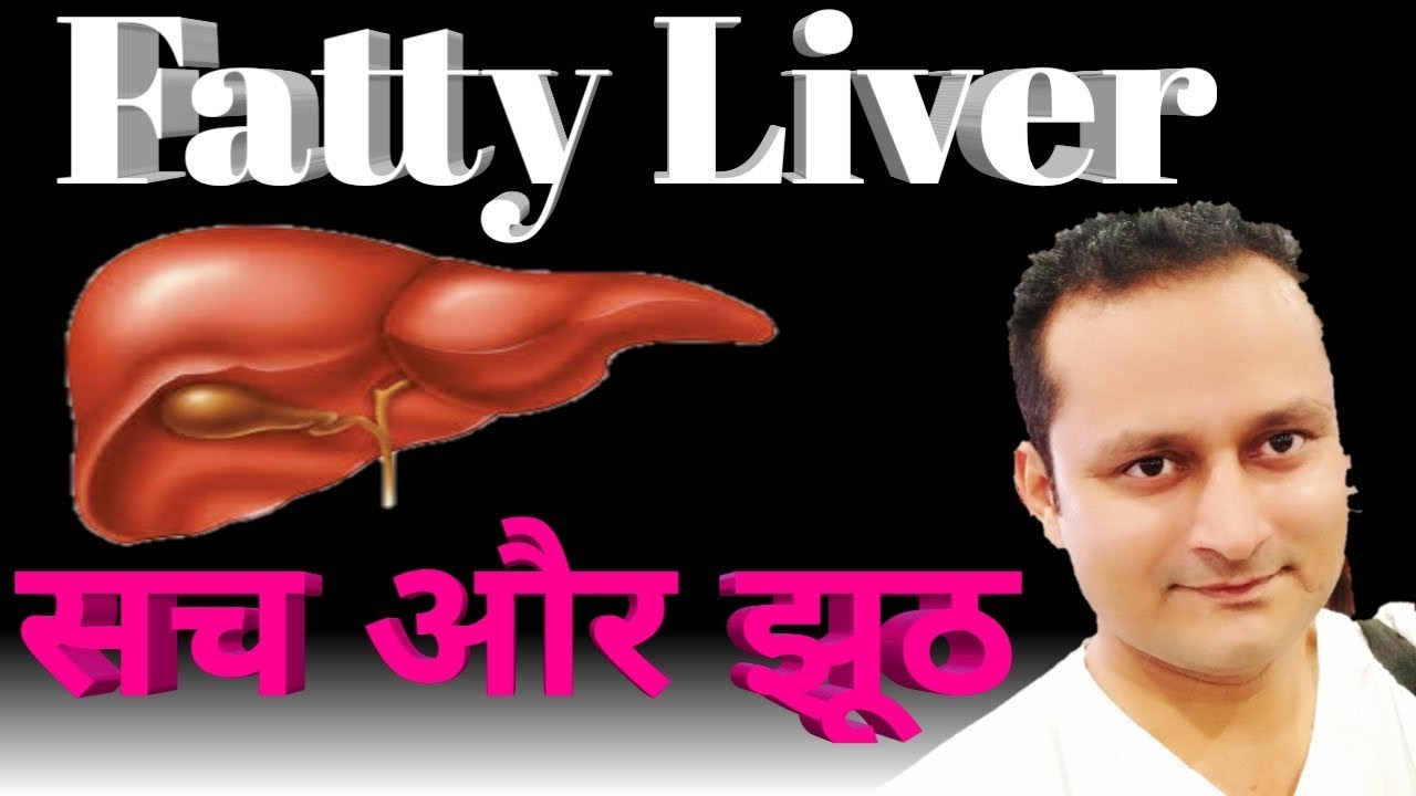 Fatty Liver ठीक करना आपके हाथ में । science in Hindi  Fatty liver  treatment, symptoms  फैटी लिवर ।