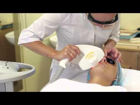 Элос эпиляция - альтернатива лазерной эпиляции. Избавьтесь от волос навсегда.