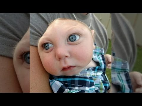 Baby Born With Large Part of Skull Missing Adorably Says 'Hello'