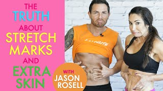 The Truth About Stretch Marks and Extra Skin with Jason Rosell | Natalie Jill