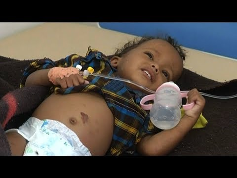 """""""A Forgotten Crisis"""": Yemen's Aid Workers Speak Out About the World's Worst Humanitarian Disaster"""