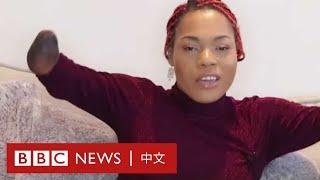 兩歲時因腦膜炎失去四肢,網紅如何笑看人生- BBC News 中文
