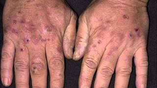 porphyria cutanea tarda useful details