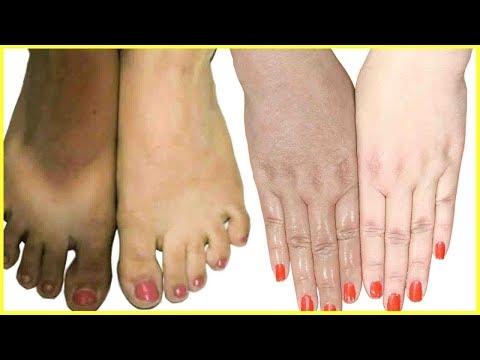 Full Body Whitening Challenge At Home | Lighten Dark Body Parts, Hands, Feet, Dark Knees & Elbows