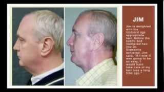 Hair Restoration Thumbnail
