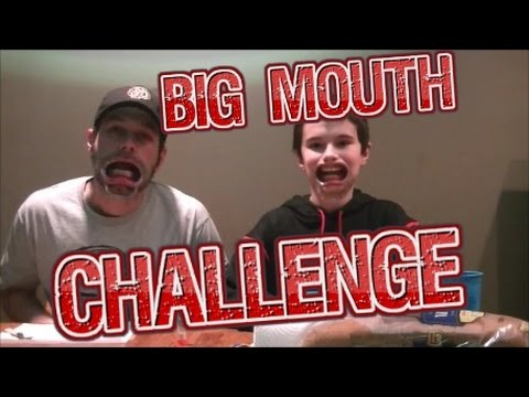 Speak Out I Mouth Guard I Big Mouth Challenge