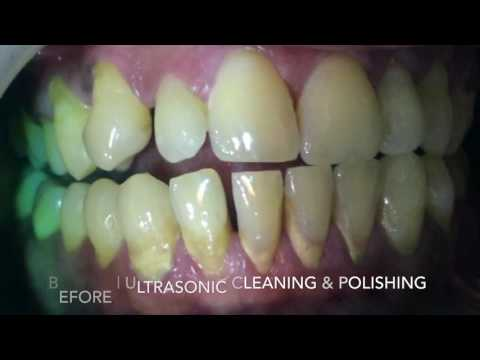 Before & After Ultrasonic Cleaning & Polishing Of Teeth & Gums