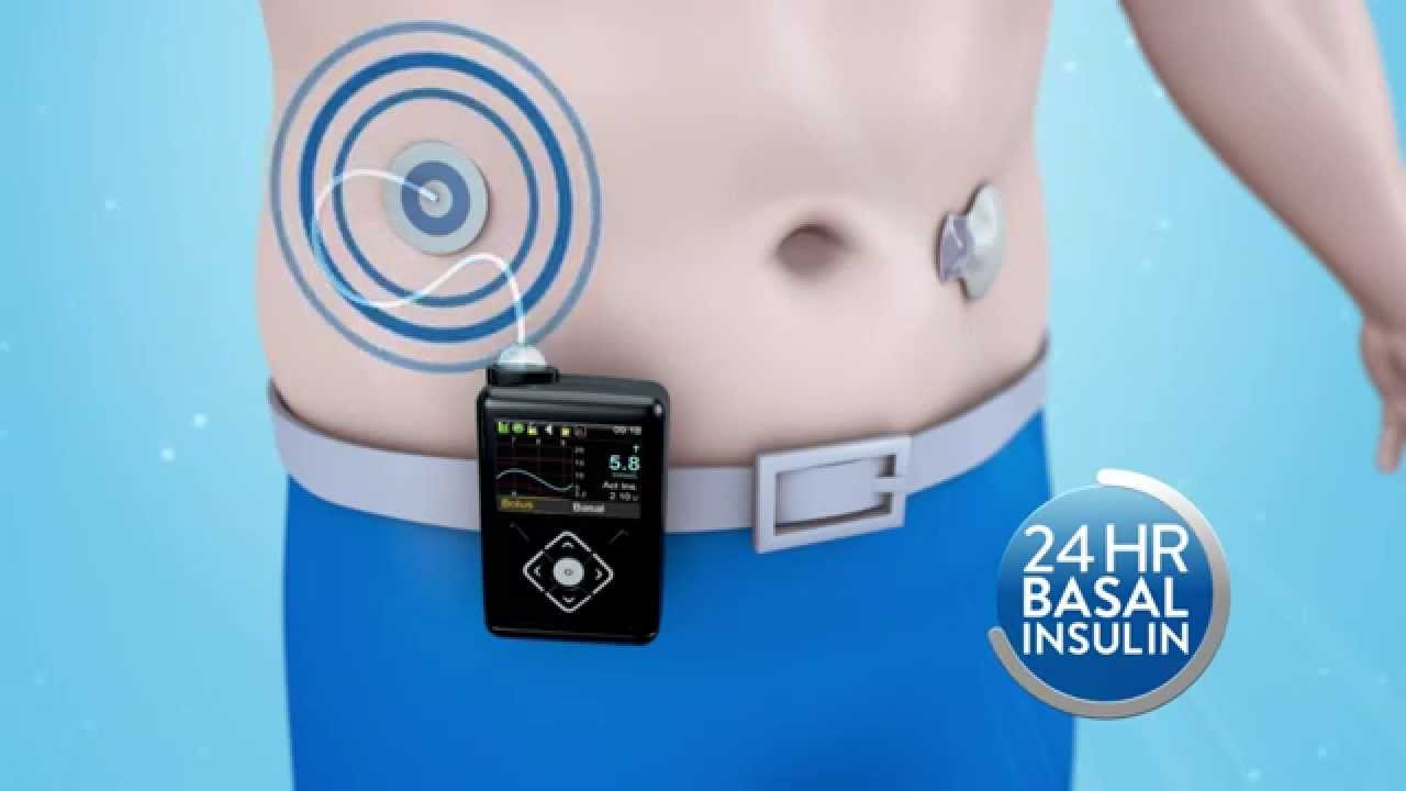 Medtronic Minimed How Does The Minimed 640g Insulin Pump