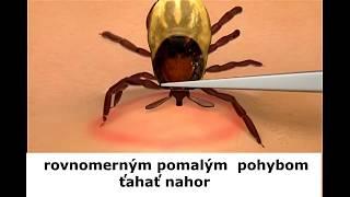 intraductalis papillómák fájnak kötőhártya vírusos papilloma