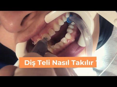 Diş Teli Nasıl Takılır ? Acıyor Mu? | Infinity Smiles