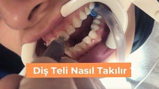 Diş Teli Nasıl Takılır ? Acıyor mu?  infinity smiles