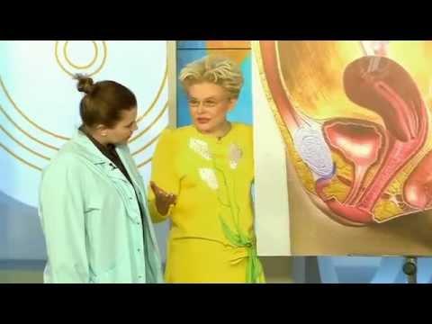 Женские болезни. Воспаление бартолиновых желез
