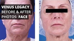 Venus Legacy™ Before & After Photos: Face