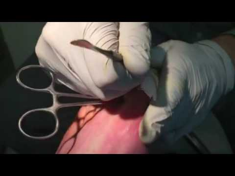 Fungus infected toenail removal
