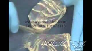 عمليات تجميل الثدي تكبير الثدي