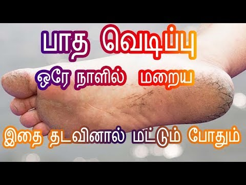 Home remedies for Cracked Feet/Heels in Tamil - பாத வெடிப்புகள் மறைய  Foot Crack -Tamil Beauty Tips