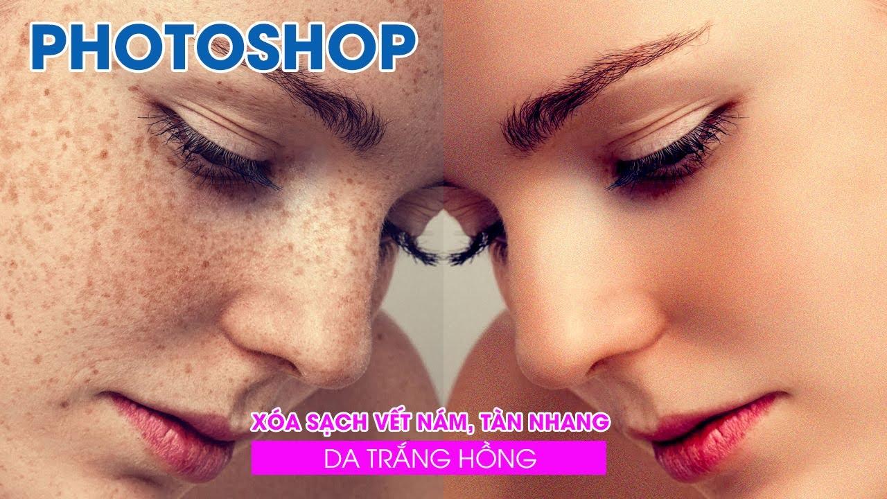 Xóa bỏ các vết nám và tàn nhang làm nước da trắng hồng với Photoshop