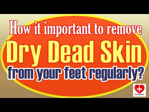 How To Get Rid Of Dead Skin On Feet - Get Rid Of Dead Skin On Feet