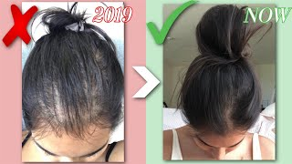 HOW I GREW MY HAIR BACK NATURALLY | Q\u0026A, BEFORE \u0026 AFTERS, HAIR LOSS STORY | RESULTS IN JUST 1 MONTH