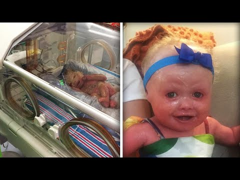 New York Baby's Skin Cracked Minutes After Her Birth Due ...