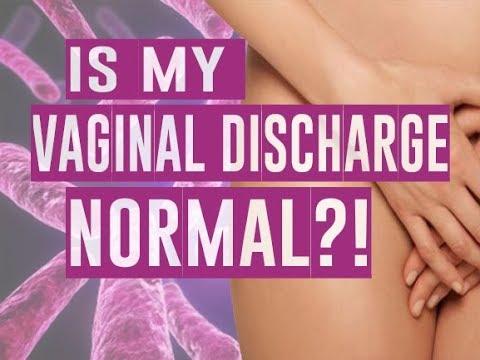 IS MY VAGINAL DISCHARGE NORMAL?! - Girl Talk with Dr. Rejuvenation