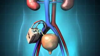 Gambar cover End Stage Renal Disease
