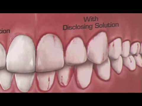 Dental Health & Gum Disease : How Is Plaque Detected?