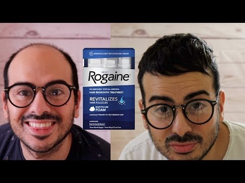 does-minoxidil-work?-|-my-3-years-rogaine-experience-and-review