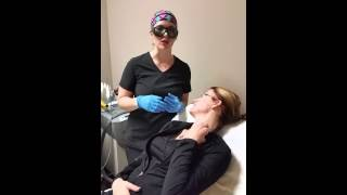 Acne treatment with Q - switch laser